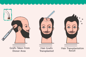Which Are The Best Hair Transplantation Clinics in Turkey?