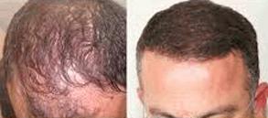 Dr. Hakan Doğanay Hair Transplant