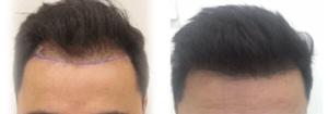 Dr. Zekeriya Kul Hair Transplant