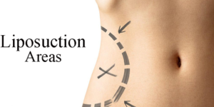 Liposuction Mostly Using Following Areas